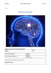 Deep Brain Stimulation | DIO